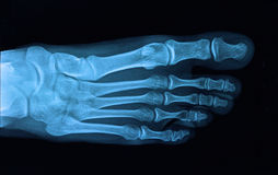 Foot x-ray. Xray foot bones orthopedic photo royalty free stock photo
