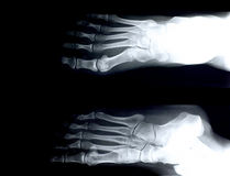 Xray/Foot front Stock Photos
