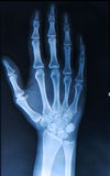 Xray of Hand/ fingers stock photography