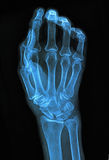 Xray of hand. Hand xray image medical background Royalty Free Stock Photo