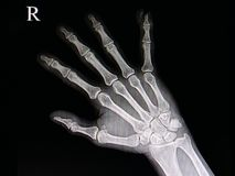 Finger tip injury. Xray of a hand of a patient with accidental traumatic amputation of little finger tip stock photography