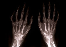 Xray hands royalty free stock photo