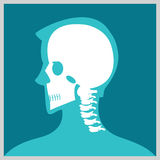 Xray of head and neck. royalty free illustration