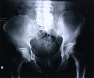 Xray/hip Royalty Free Stock Photo