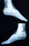 Xray of a human ankle Stock Images