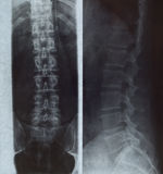Xray of human spine. Human spine Xray photo from side and back Royalty Free Stock Image