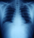 Xray of a human thorax. Chest royalty free stock photography