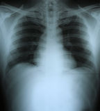 Xray of a human thorax. Chest stock photo
