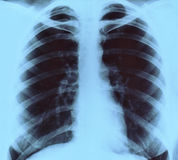 Xray image. Chest frontal xray image for medical diagnosis stock image