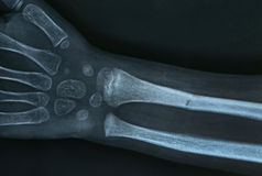 Xray image of a broken hand Stock Images