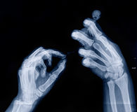 Xray image of human arms holding unknown creature Royalty Free Stock Photos