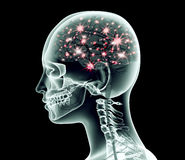 Xray image of human head with brain and electric pulses Royalty Free Stock Images