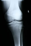 Xray/Knee front. View Royalty Free Stock Photography