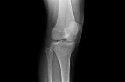 Xray Knee Joints of an Adolescent Stock Photo