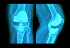 Xray knee prosthesis Stock Photography