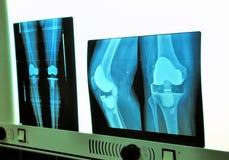 Xray knee prosthesis Royalty Free Stock Photos
