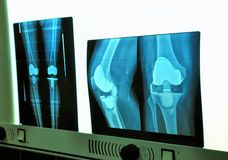 Xray knee prosthesis Stock Images
