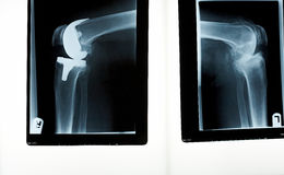 A xray of a knee replacement Royalty Free Stock Photography