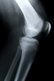Xray/Knee side. Xray of Knee side view Royalty Free Stock Photos