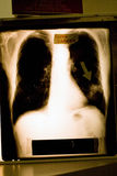 Xray of lung cancer. An x-ray of lung cancer with arrow pointing to the spot royalty free stock images