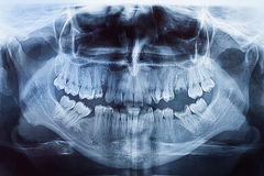 Xray of mouth Stock Photography