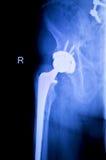 Xray orthopedische medische aftasten van de heupvervanging Royalty-vrije Stock Fotografie