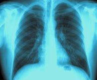 Xray płuco Zdjęcia Stock