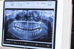 Xray Panoramic Dental Stock Photography