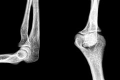 Xray pathology human elbow Stock Photos