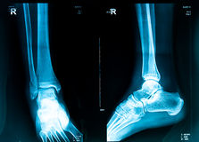 Xray picture Royalty Free Stock Image
