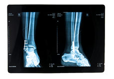 Xray picture. With plate and screws Stock Photos