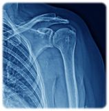 Xray Shoulder. Xray of the anterior view of the shoulder with periarthritis Stock Images