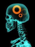 Xray of skull with gears. Royalty Free Stock Image