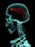 Xray of skull with gun. Royalty Free Stock Photo