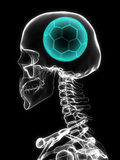 Xray of skull with soccer ball. Royalty Free Stock Photos