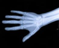 Promieniowanie Rentgenowskie Nadgarstek Ręki Zdjęcie Stock