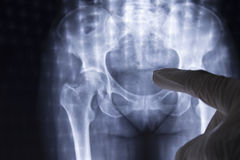 Xray of woman lower body Royalty Free Stock Images