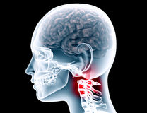 Xray of a womans scull on black with clipping path stock illustration