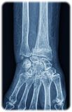 Xray of the wrist Stock Photos