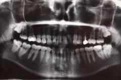 Xray zębów dentysty anatomii obraz cyfrowy Obraz Stock