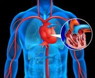 Xrays of human heart Stock Image