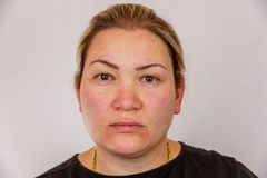 A 38-year-old Caucasian woman with overweight and hormonal disruption shows her face with skin problems. On a light isolated backg. Round. Concept for medicine royalty free stock photography