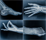 50 year Old Woman's X-Ray Scans from Hands and Feet Royalty Free Stock Photos