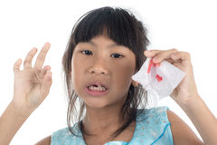 6 years old child has lost the baby tooth. Stock Image