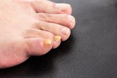 Yellow male fingernail with fungus. As fungal disease of toenails or foot nail toes Royalty Free Stock Photography