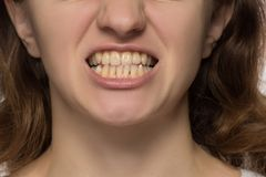 Yellow is not even and crooked teeth of a young woman. Yellow is not even and crooked lower teeth of a young woman royalty free stock photo