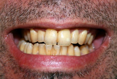 Yellow teeth Royalty Free Stock Photography
