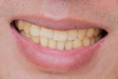 Yellow teeth in male from smoke and coffee royalty free stock photos