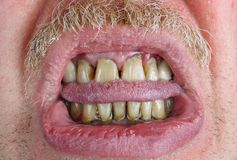 Yellow teeth and mustache, bitten tongue and dry lips in an elderly old man macro royalty free stock images