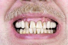 Yellow teeth  studio shot Royalty Free Stock Photos